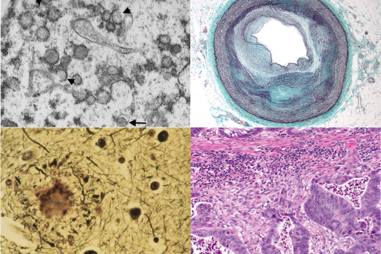 upper left: COVID-19 lung, upper right: atherosclerosis, lower left: Alzheimer's ameloid paques, lower right: colorectal cancer